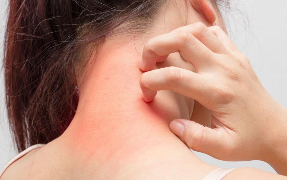 piel atópica y piel sensible